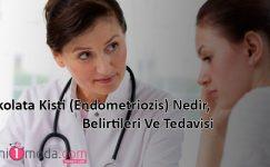 Çikolata Kisti (Endometriozis) Nedir, Belirtileri Ve Tedavisi